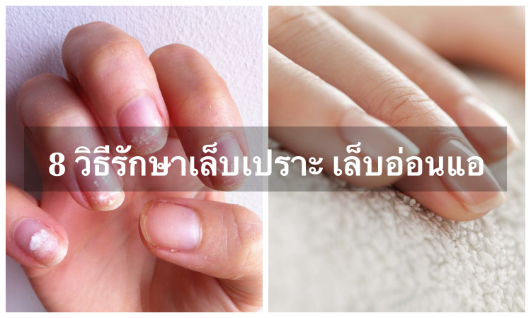 Home Remedies for Brittle Nails cover